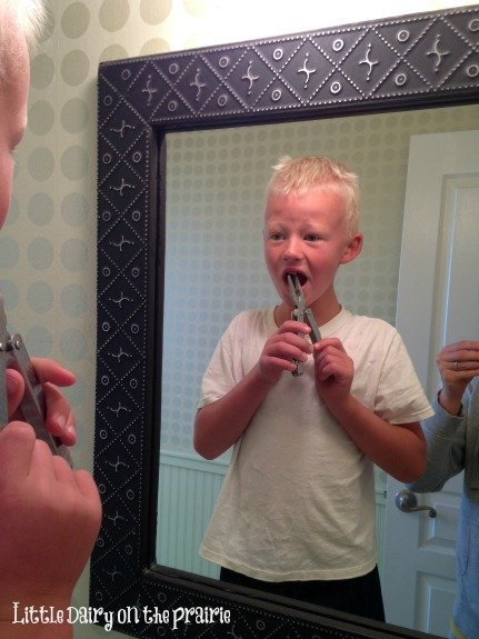 He pulled out his own tooth!